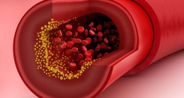 Is There A Connection Between Cholesterol Levels And Thyroid Health?